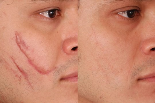 Scar Reduction