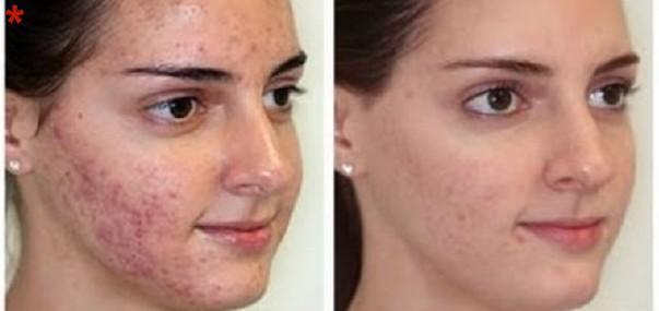 Inflammatory Acne