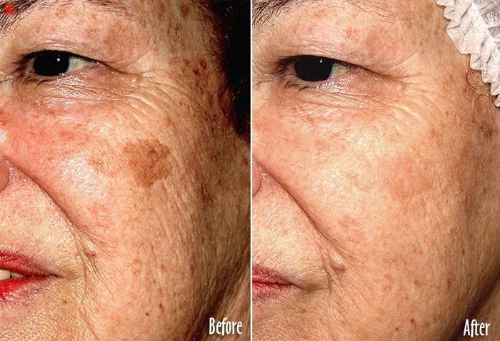 Age spots/brown spots