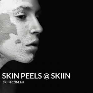 Skin Peels can treat skin ageing, acne, pigmentation, redness and fine lines.