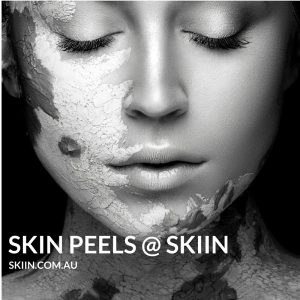 Superficial, medium and deep skin peels available