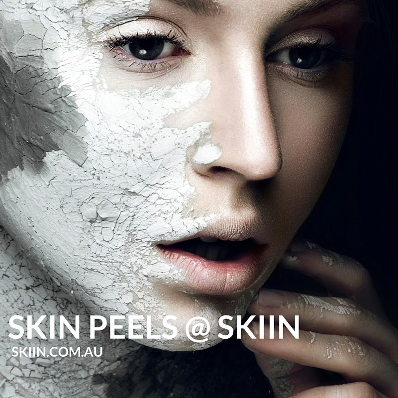 Skin Peels at SKIIN in Bundoora