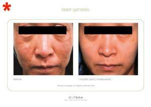 Outcome from Genuine LaserFacial