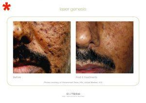 Laser Genesis and acne scars